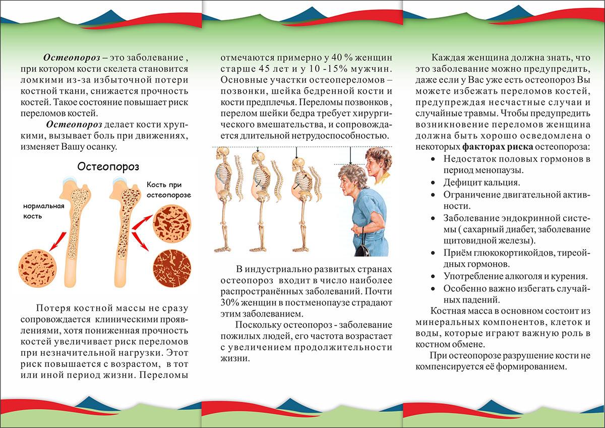 Остеопороз – что  нужно знать часть 2